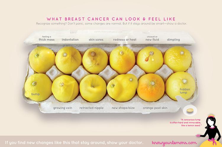 """""""Conoce tus limones"""": Una guía visual para conocer los signos del cáncer de mama"""